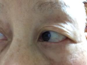 乳がんとの日々(5)抗がん剤副作用 睫毛がない