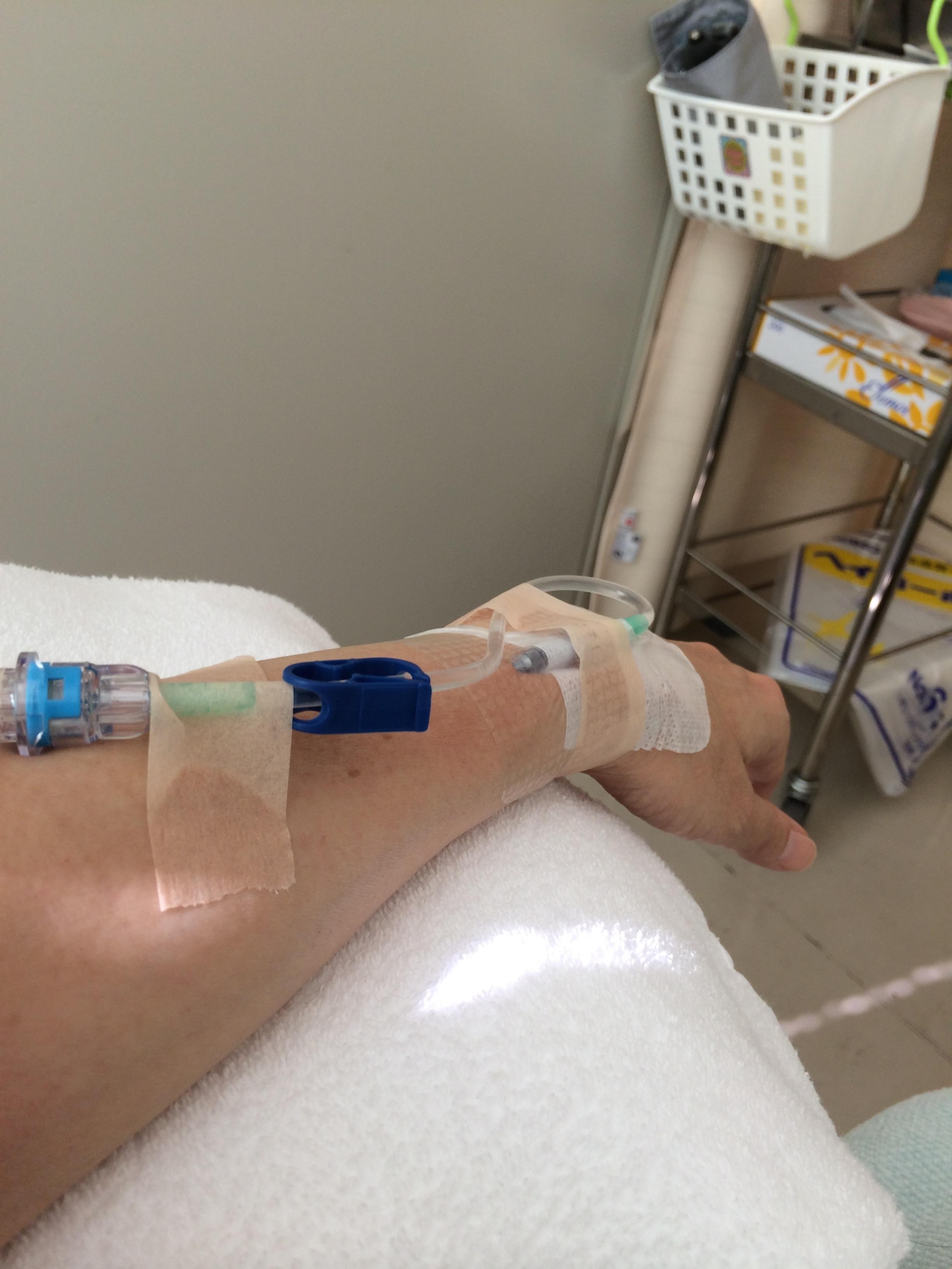 乳がんとの日々(13)次の副作用–全身痒い!
