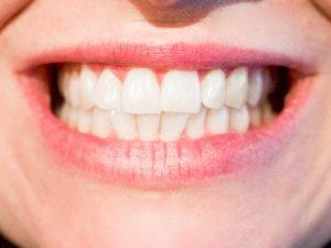キレイになりたい!50代の歯列矯正治療(現在進行形(15))矯正器具はあとひと月に!
