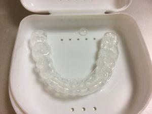 キレイになりたい!50代の歯列矯正治療ー矯正装置をはずし、リテーナーをつける!