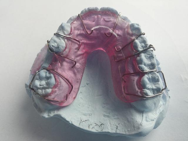 キレイになりたい!50代の歯列矯正治療 矯正器具をはずすまであと10日!